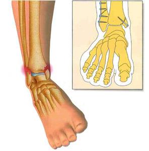 double coupon plusieurs couleurs recherche de véritables Autres pathologies du pied - Chirurgie pied