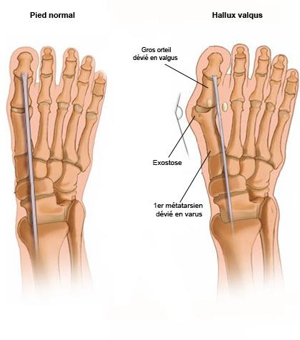 Traitement hallux valgus for Douleur interieur du pied